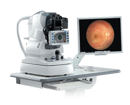retinopatia diabetica 01