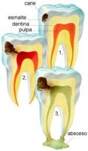 caries 101