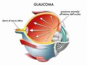 glaucoma 010