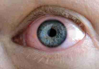 GLAUCOMA. EN QUE CONSISTE
