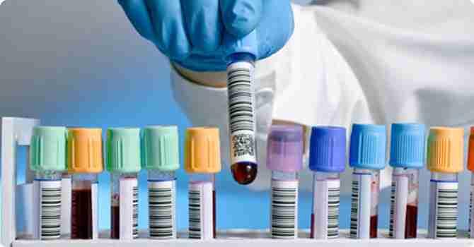 que hacer antes de un análisis de sangre
