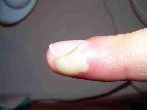 como quitar un unero de un dedo dela mano