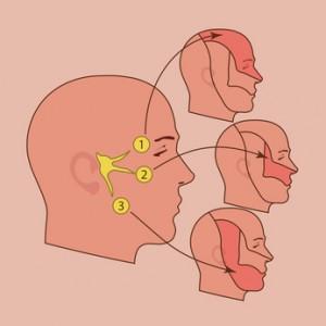 dolor de cabeza 6001