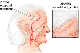 dolor de cabeza 7001