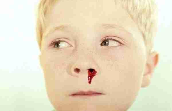 sangrado por la nariz 0044
