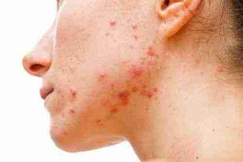 acne-juvenil 02
