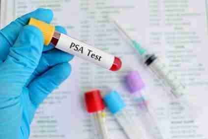 psa- antigeno prostatico especifico total y libre