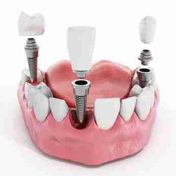 implantes dentales 200