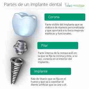 implantes dentales 1001