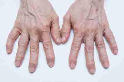 consejos para la artrosis 01