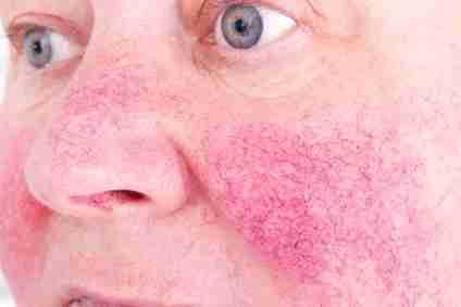 imagen de una mujer con rosacea en la cara